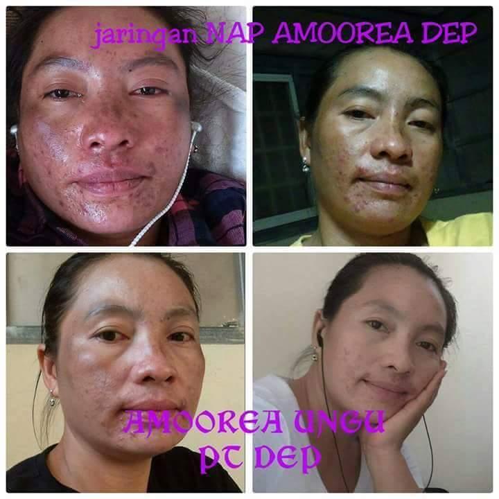 Foto Testimonial Pemakaian Amoorea